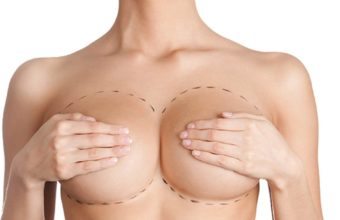 operatie-de-augmentare-mamara